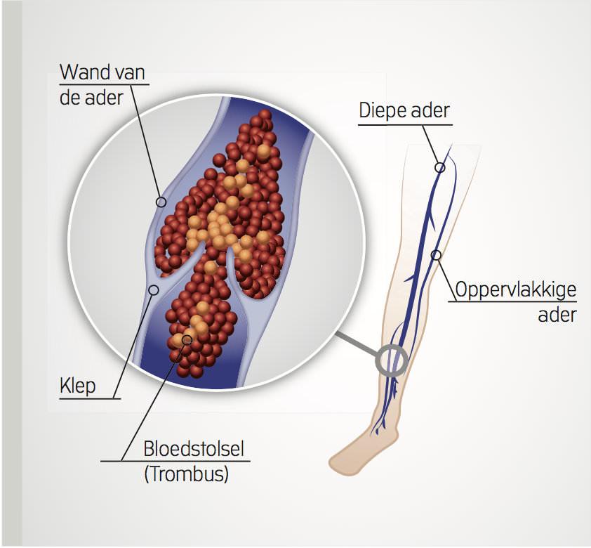 diepe veneuze trombose